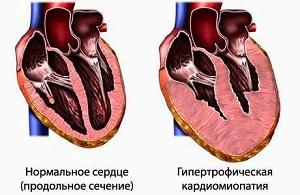Гипертрофическая кардиомиопатия у кошек.